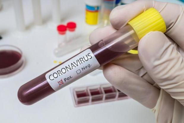 181 more people die in hospitals in England after testing positive for coronavirus