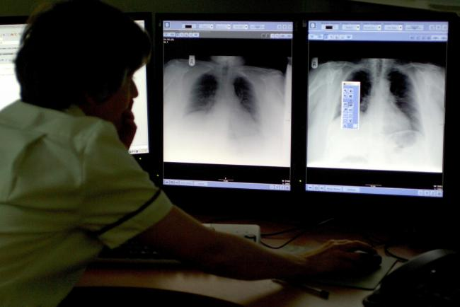 Generic stock picture of a consultant sudying a chest x-ray at Derby City Hospital.