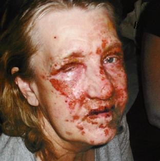 SHOCKING INJURY: Shelia Insch suffered horrific facial burns after  a drain unblocker exploded.