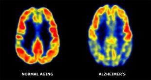 The two brain scans show the difference in metabolic rates one would find in a patient without Alzheimer's, left, and one with the disease, right