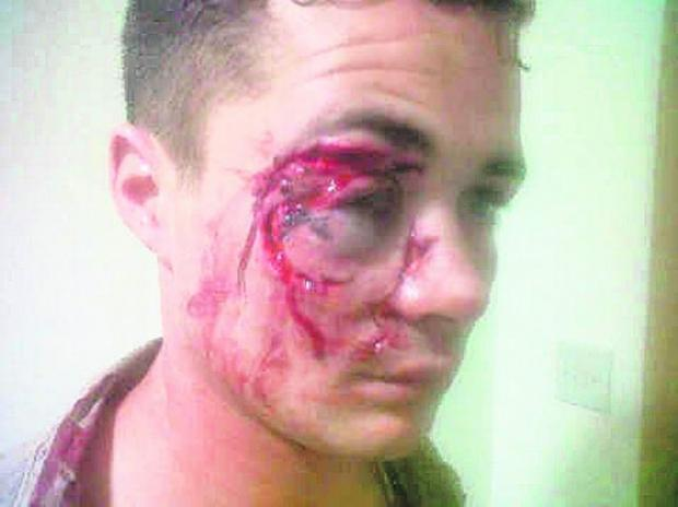Daily Echo: The injuries suffered by Joe Bye after his head was smashed onto a glass.