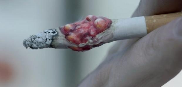 Daily Echo: The hard hitting anti-smoking advert showing a tumour in a cigarette