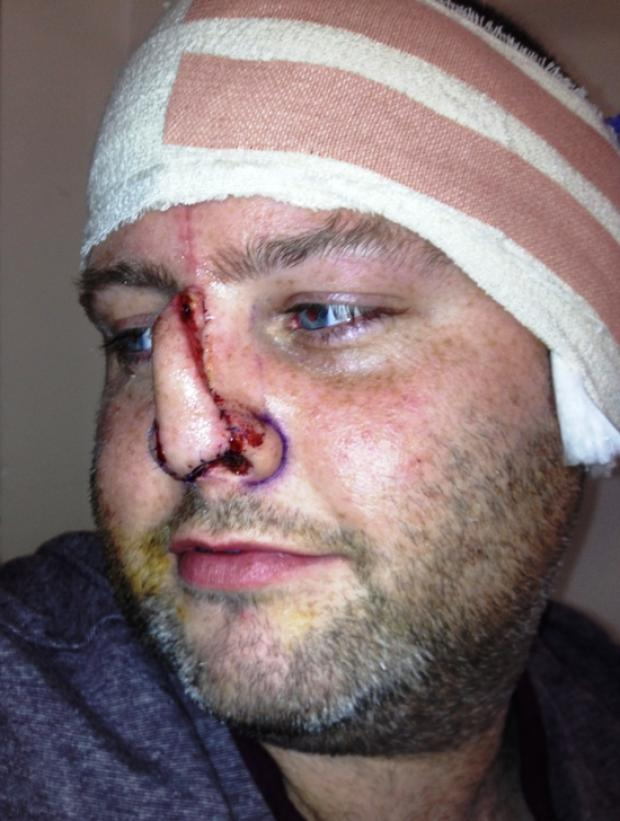 Horror attack: Friend bit my nose off