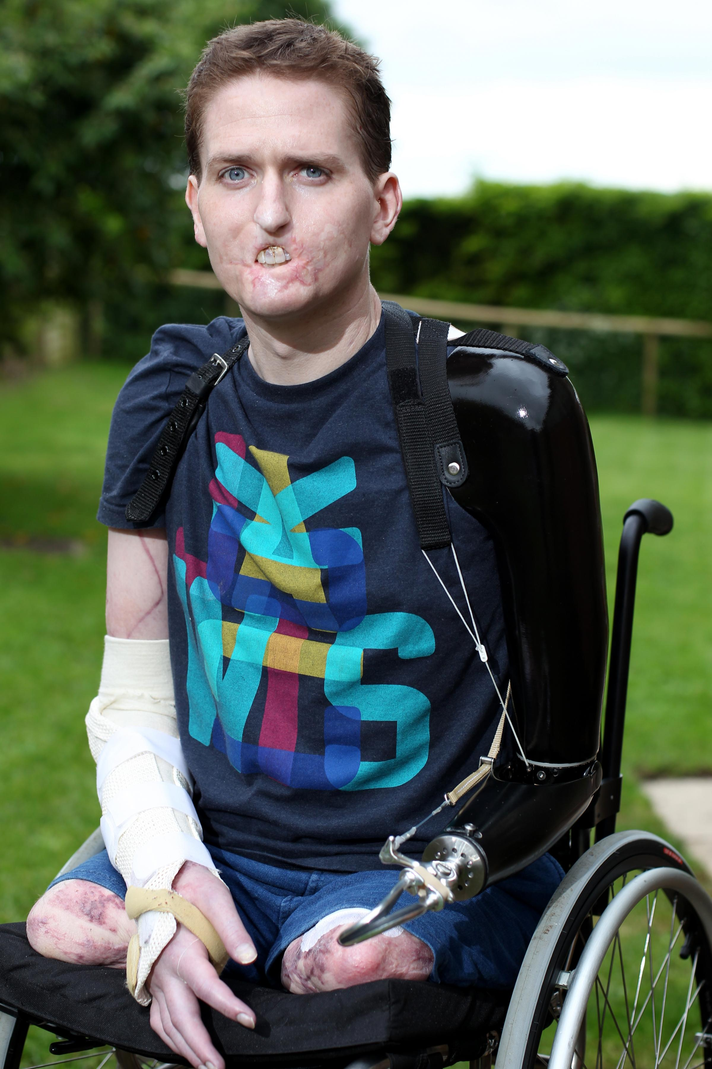 Triple amputee Alex Lewis suffers heartache