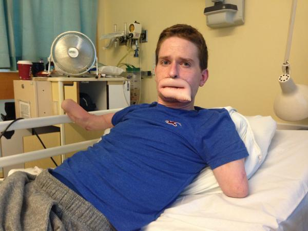 'I'm determined to smile again' - quadruple amputee Alex Lewis undergoes 20 hour lip reconstruction