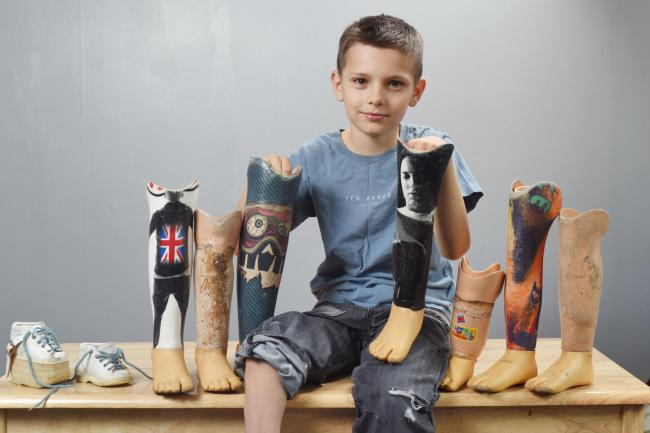 Eminem responds to 10-year-old fan's Slim Shady prosthetic legs