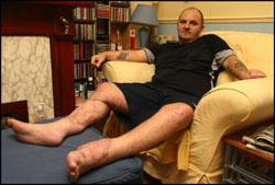 Worker To Sue After Forklift Truck Crushed His Legs Daily Echo