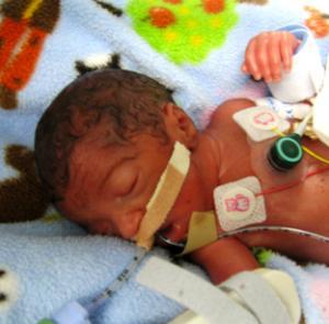 Foto Seorang Ibu Melahirkan Setelah 2 Hari Meninggal melahirkan Aya Soliman